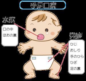 teashikuchi